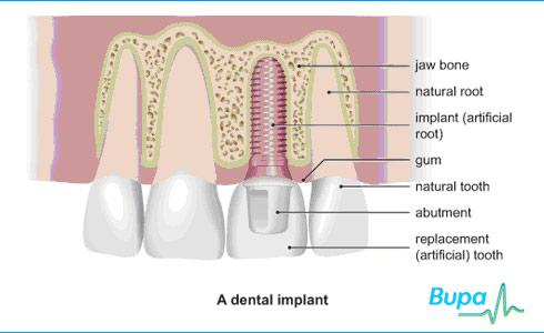 Implantes dentales tipos de hueso