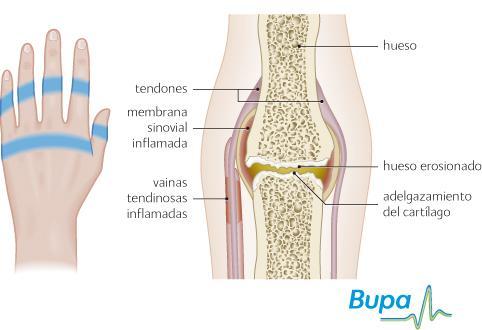 Artrite reumatoide, i sintomi che la caratterizzano
