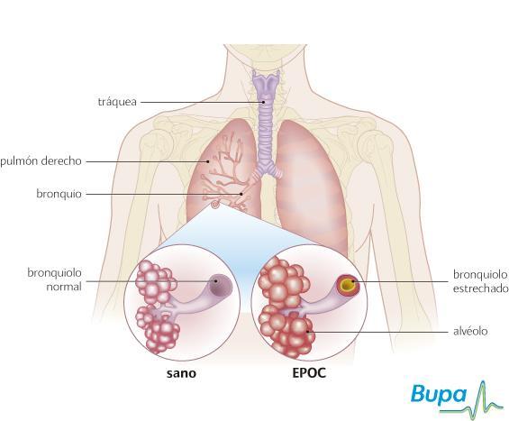 Cuales son las enfermedades relacionadas con la vias respiratorias