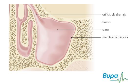 Reducir para libre hinchazón la nasal venta medicamentos de